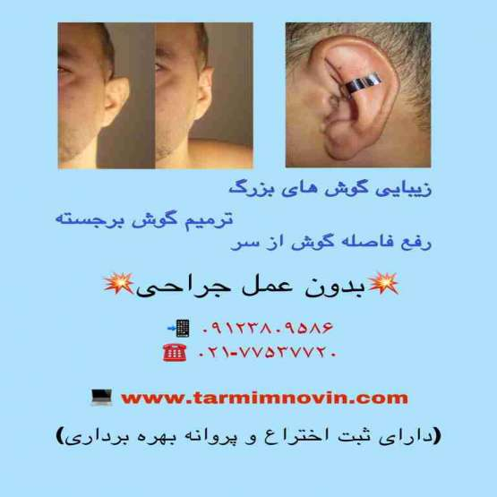 درمان گوشهای بزرگ بدون عمل جراحی