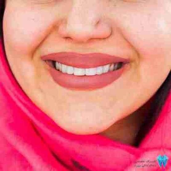 خدمات دندانپزشکی در سعادت آباد