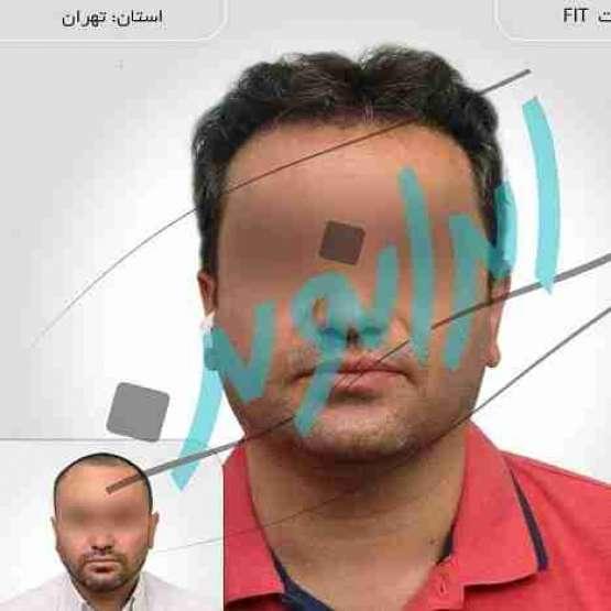کاشت مو در ایران نوین تنها با دو و نیم میلیون تومان